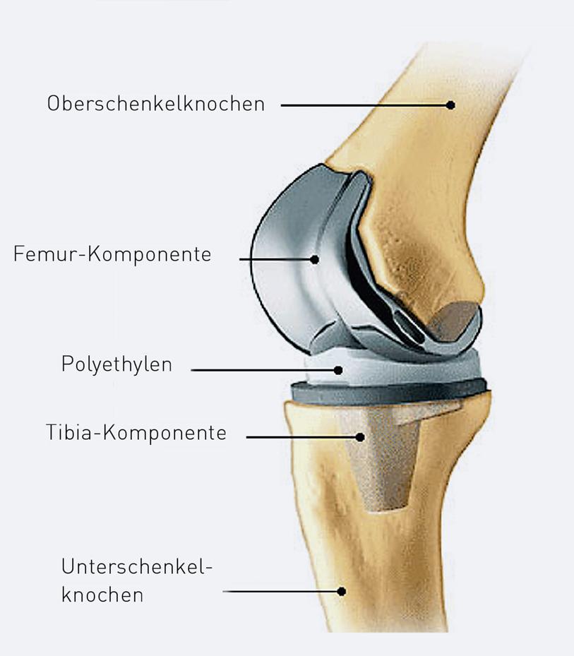 Knie lange künstliches arbeitsunfähig wie Künstliches Kniegelenk: